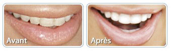 blanchiment-dent
